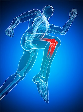 Knee pain, conceptual computer artwork. Stock Photo - Premium Royalty-Free, Code: 679-06780345