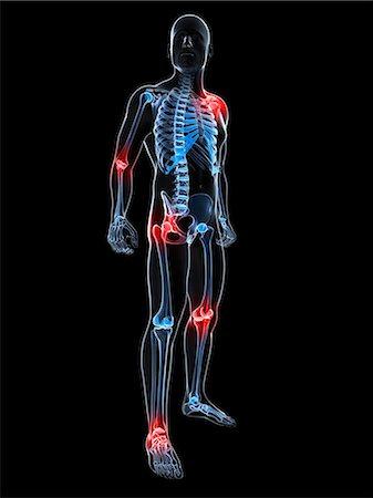 Joint pain, conceptual computer artwork. Stock Photo - Premium Royalty-Free, Code: 679-06780356