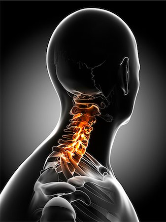 Neck pain, conceptual computer artwork. Stock Photo - Premium Royalty-Free, Code: 679-06780505