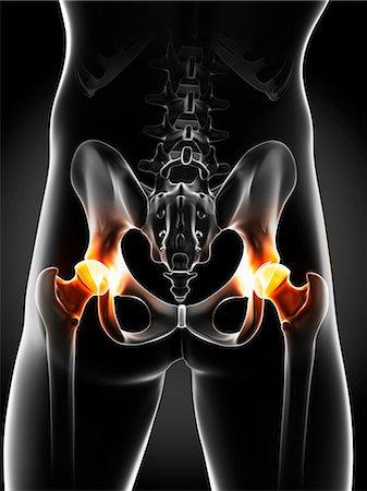 spinal column - Hip pain, conceptual computer artwork. Stock Photo - Premium Royalty-Free, Code: 679-06780513