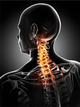 Neck pain, conceptual computer artwork. Stock Photo - Premium Royalty-Free, Code: 679-06780521