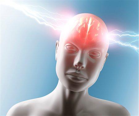 Headache, conceptual computer artwork. Stock Photo - Premium Royalty-Free, Code: 679-06780957