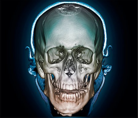 Human skull. Coloured 3D computer tomography (CT) scan of the skull of a 35 year old patient. Stock Photo - Premium Royalty-Free, Code: 679-06781269