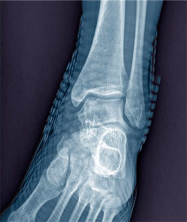 Healthy ankle joint. Coloured frontal X-ray of the left ankle of a 21 year old patient. Strapping around the ankle is visible on this X-ray. Stock Photo - Premium Royalty-Free, Code: 679-06781287