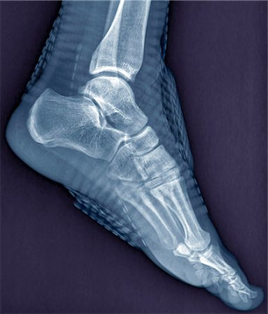 Healthy ankle joint. Coloured profile X-ray of the left ankle of a 21 year old patient. Strapping around the ankle is visible on this X-ray. Stock Photo - Premium Royalty-Free, Code: 679-06781289
