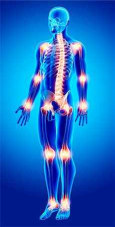 Joint pain, computer artwork. Stock Photo - Premium Royalty-Free, Code: 679-07154355