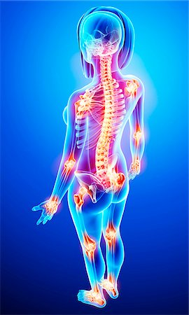 Joint pain, computer artwork. Stock Photo - Premium Royalty-Free, Code: 679-07151554