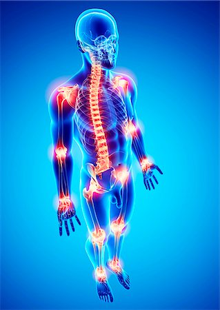 Joint pain, computer artwork. Stock Photo - Premium Royalty-Free, Code: 679-07152988