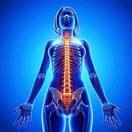 Spine pain, computer artwork. Stock Photo - Premium Royalty-Free, Code: 679-07153236
