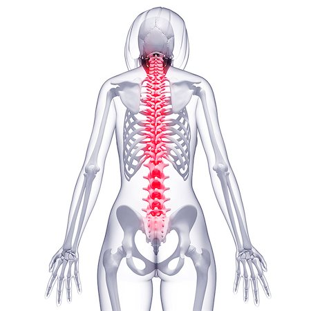 spinal column - Spine pain, computer artwork. Stock Photo - Premium Royalty-Free, Code: 679-07153656