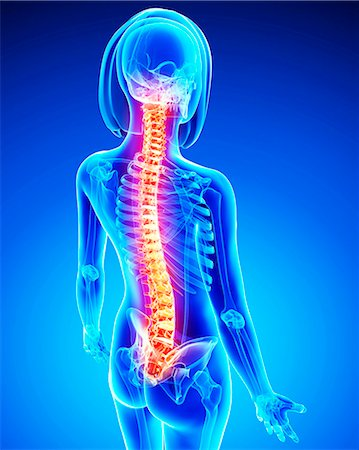 spinal column - Spine pain, computer artwork. Stock Photo - Premium Royalty-Free, Code: 679-07153835