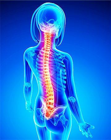 spinal column - Spine pain, computer artwork. Stock Photo - Premium Royalty-Free, Code: 679-07153835