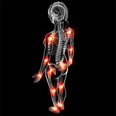 Joint pain, computer artwork. Stock Photo - Premium Royalty-Free, Code: 679-07162293