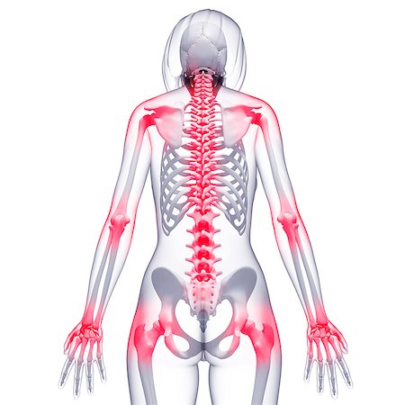 spinal column - Joint pain, computer artwork. Stock Photo - Premium Royalty-Free, Code: 679-07162318