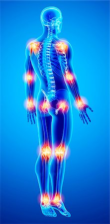 spinal column - Joint pain, computer artwork. Stock Photo - Premium Royalty-Free, Code: 679-07162352