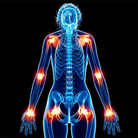 Joint pain, computer artwork. Stock Photo - Premium Royalty-Free, Code: 679-07162491