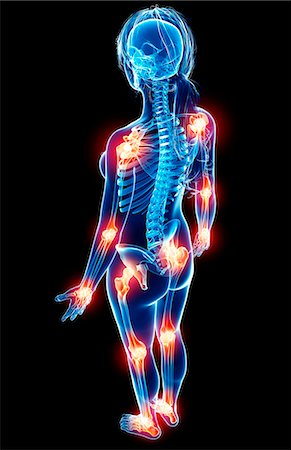Joint pain, computer artwork. Stock Photo - Premium Royalty-Free, Code: 679-07163618
