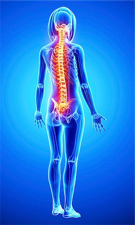 spinal column - Back pain, computer artwork. Stock Photo - Premium Royalty-Free, Code: 679-07163717