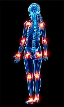 female - Joint pain, computer artwork. Stock Photo - Premium Royalty-Free, Code: 679-07163918