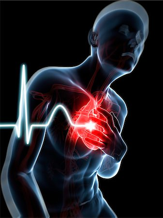Heart attack, computer artwork. Stock Photo - Premium Royalty-Free, Code: 679-07604039