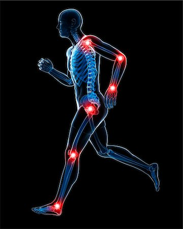 Painful joints, computer artwork. Stock Photo - Premium Royalty-Free, Code: 679-07604314