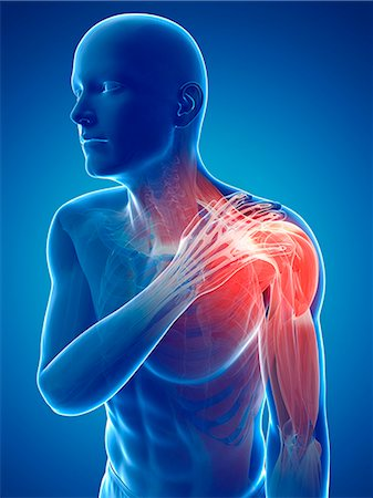 Painful shoulder, computer artwork. Stock Photo - Premium Royalty-Free, Code: 679-07604383