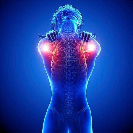 rib - Shoulder pain, computer artwork. Stock Photo - Premium Royalty-Free, Code: 679-07604891