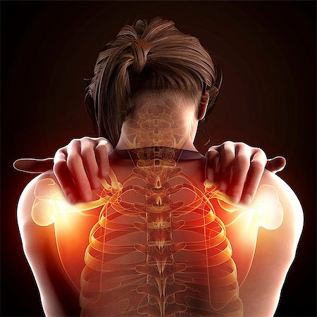 spinal column - Shoulder pain, computer artwork. Stock Photo - Premium Royalty-Free, Code: 679-07604900