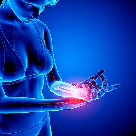 Wrist pain, computer artwork. Stock Photo - Premium Royalty-Free, Code: 679-07604924