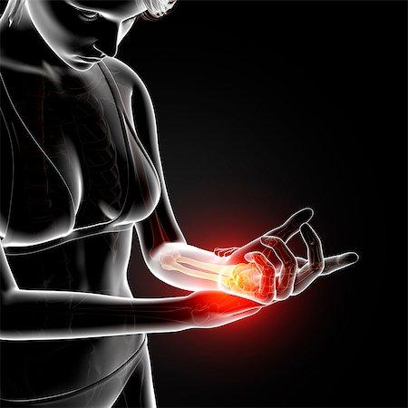 Wrist pain, computer artwork. Stock Photo - Premium Royalty-Free, Code: 679-07604925