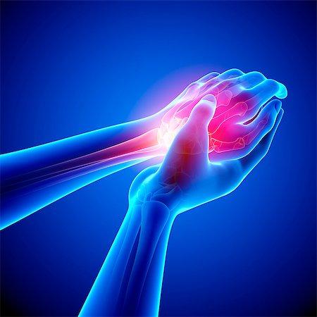 Wrist pain, computer artwork. Stock Photo - Premium Royalty-Free, Code: 679-07604926