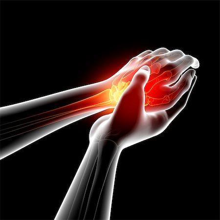 Wrist pain, computer artwork. Stock Photo - Premium Royalty-Free, Code: 679-07604927