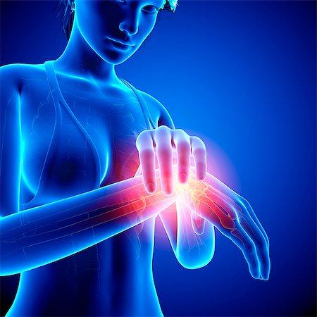 Wrist pain, computer artwork. Stock Photo - Premium Royalty-Free, Code: 679-07604928