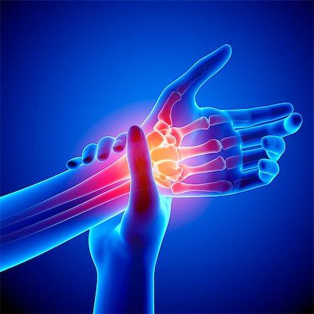 Wrist pain, computer artwork. Stock Photo - Premium Royalty-Free, Code: 679-07604920
