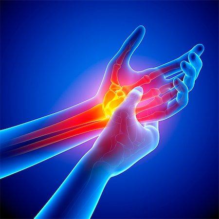 Wrist pain, computer artwork. Stock Photo - Premium Royalty-Free, Code: 679-07604922