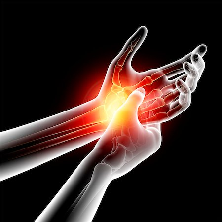 Wrist pain, computer artwork. Stock Photo - Premium Royalty-Free, Code: 679-07604923