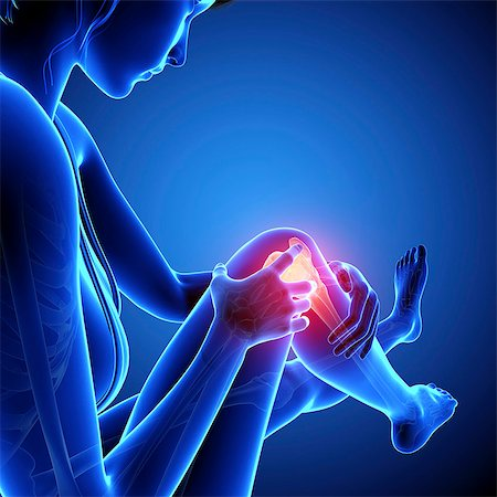Knee pain, computer artwork. Stock Photo - Premium Royalty-Free, Code: 679-07604939