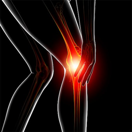 Knee pain, computer artwork. Stock Photo - Premium Royalty-Free, Code: 679-07604948