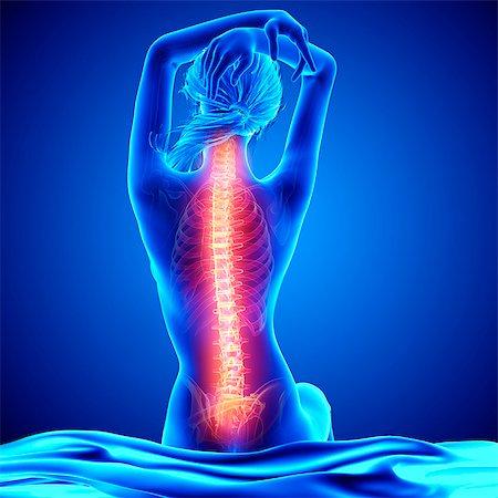 spinal column - Back pain, computer artwork. Stock Photo - Premium Royalty-Free, Code: 679-07604954
