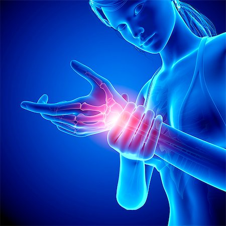 Wrist pain, computer artwork. Stock Photo - Premium Royalty-Free, Code: 679-07604959