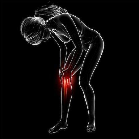 spinal column - Knee pain, computer artwork. Stock Photo - Premium Royalty-Free, Code: 679-07604950