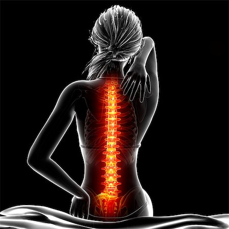 spinal column - Back pain, computer artwork. Stock Photo - Premium Royalty-Free, Code: 679-07604951