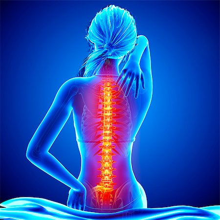 spinal column - Back pain, computer artwork. Stock Photo - Premium Royalty-Free, Code: 679-07604952