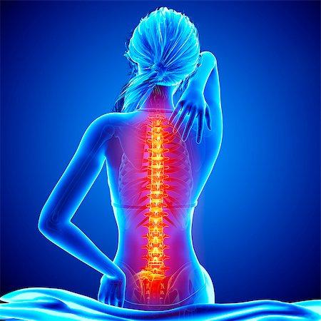 spinal column - Back pain, computer artwork. Stock Photo - Premium Royalty-Free, Code: 679-07604952