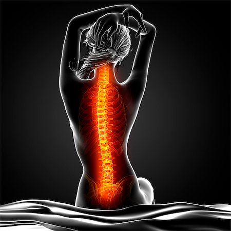 spinal column - Back pain, computer artwork. Stock Photo - Premium Royalty-Free, Code: 679-07604953