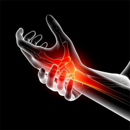 Wrist pain, computer artwork. Stock Photo - Premium Royalty-Free, Code: 679-07604964