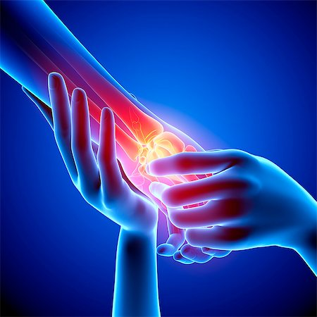 Wrist pain, computer artwork. Stock Photo - Premium Royalty-Free, Code: 679-07604965