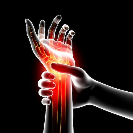 Wrist pain, computer artwork. Stock Photo - Premium Royalty-Free, Code: 679-07604966