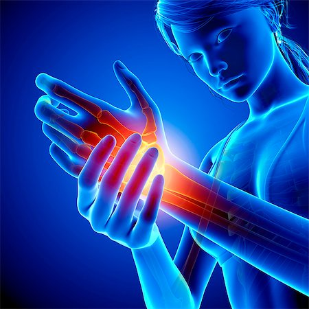 Wrist pain, computer artwork. Stock Photo - Premium Royalty-Free, Code: 679-07604967