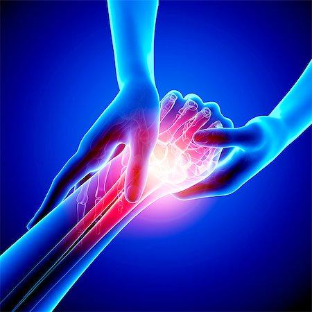 Wrist pain, computer artwork. Stock Photo - Premium Royalty-Free, Code: 679-07604962